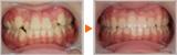 15歳女性、下顎前突(受け口)の非抜歯矯正