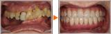 歯槽骨が退化した患者様の上下All-on-4