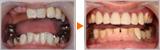 咬み合わせを整えたAll-on-4による全顎治療
