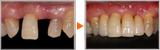 失った前歯のインプラント治療を希望された方の全顎治療