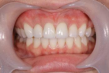 歯 列 矯正 費用 大人