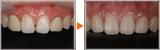 MTM(部分矯正)と補綴による前歯の審美治療