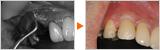 歯ぎしりで割れた歯に骨を足して審美的に修復