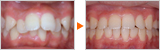成長期の上顎前突の矯正治療