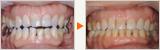 開咬と反対咬合(受け口)の歯列矯正