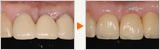 天然歯とインプラントによる前歯の審美治療