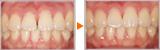 マウスピース矯正による前歯の隙間の審美回復