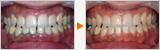 痛みがない歯周病の進行の予防症例