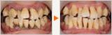 歯並びが悪い方の歯周病と口臭治療