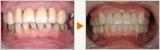 奥歯と前歯のインプラントと下顎矯正のフルマウス治療
