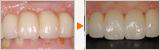 歯肉の形を整えてキレイなブリッジを入れる「オベイトポンテック」テクニック