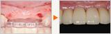 前歯4本を2本のインプラントで審美回復したケース