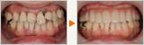 歯が動揺し、前突し始めた方のAll-on-4と歯周病治療