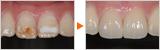 ラミネートによる前歯の審美治療