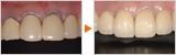 歯ぐきの色と被せ物をキレイにしたオールセラミックの症例