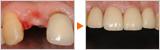 長さを揃えるのが難しいとされる前歯のインプラント
