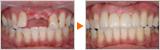 事故により前歯を失われた方のブリッジによる審美症例