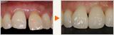 事故で捻転した歯のインプラント治療と歯周病治療