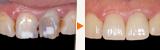 前歯のむし歯の審美的な補綴治療