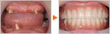 重度の歯周病と受け口で悩んでおられた患者様のAll-on-4の症例です。