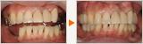 抜歯が元で歯が斜めに傾いてきた方のフルマウス症例