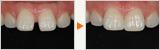 歯の表面を全て削らないパーシャルラミネートベニア
