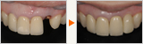 歯折した方の周囲の人工歯に合わせた審美インプラント
