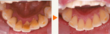 欠損補綴(インプラント)治療に伴う歯周病の改善