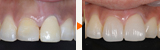 セラミックとコンポジットレジンによる前歯の治療