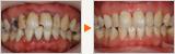 早期に解決した歯周病治療の症例