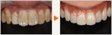 歯周外科とホワイトニングを絡めたノンメタル治療