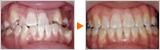 叢生・交叉咬合・下顎前突の矯正治療