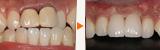 2回の骨造成と歯肉移植による前歯のインプラント
