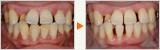 重度の歯周病に対する歯科医師・衛生士・患者様の連携による治療