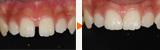 コンポジットレジン(CR)による歯の隙間の審美修復