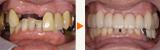 ブリッジを用いた前歯部審美インプラント