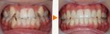 顎関節症の歯列矯正と審美回復