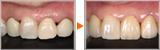 前歯の審美回復、不良補綴のやりかえ症例
