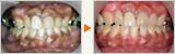 歯周病治療から予防歯科による口腔衛生の改善