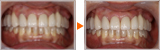 63歳女性、インプラントと審美補綴、歯列矯正よるフルマウス治療