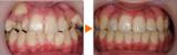 1年2ヶ月で治療を終了した叢生と上顎前突の症例