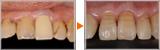 64歳男性 天然歯に近づける前歯部審美症例