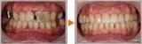 歯周病・虫歯のコンプレックスの審美的・機能的なフルマウス治療