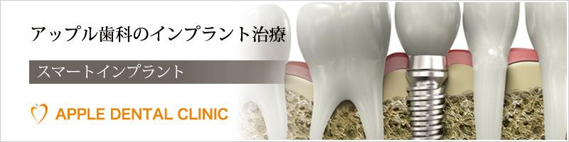アップル歯科のインプラント