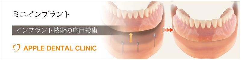 アップル歯科のミニインプラント治療