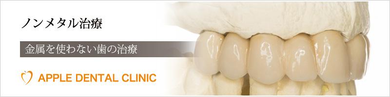 アップル歯科のノンメタル治療