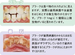 プラークと歯石の違い