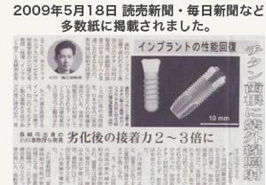 スーパーオッセオインテグレーションの新聞記事