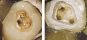 DENTA300 歯科用顕微鏡