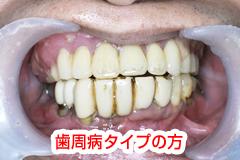 虫歯になりやすい
